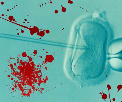 Повязанные кровью: как технологии ЭКО делают нас убийцами